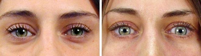 blepharoplastie tunisie : chirurgie poches sous les yeux : photo avant apres