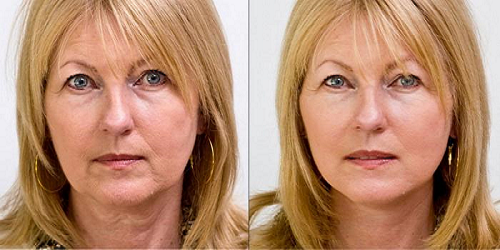 lifting cervico facial photos avant apres