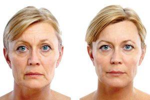 avantages lifting facial