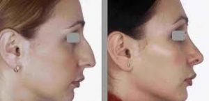 rhinoplastie medicale tunisie se refaire le nez sans chirurgie. Black Bedroom Furniture Sets. Home Design Ideas