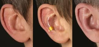 correction oreilles decollees